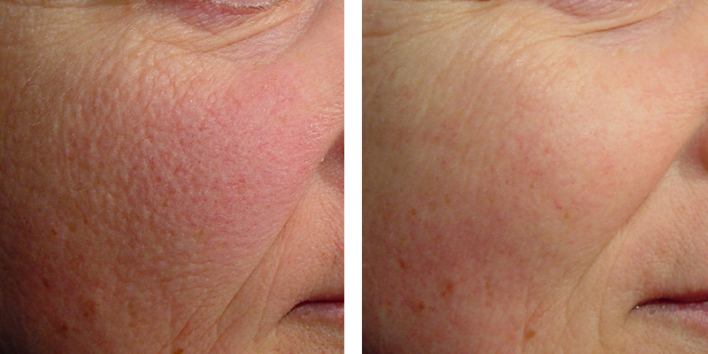 For Men Laser Genesis Treatment For Uneven Texture And Rosacea By