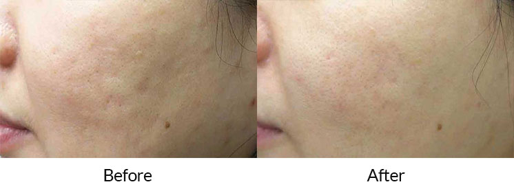 enlighten™ by CUTERA® Skin Toning Laser Treatment in Midtown Toronto