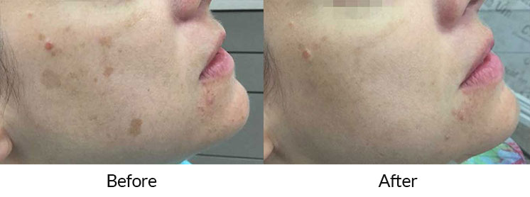 enlighten™ by CUTERA® Laser Treatment for Benign Pigmented Lesions
