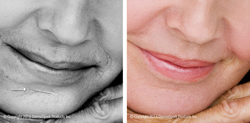 Dermastamp Microneedling Before and After