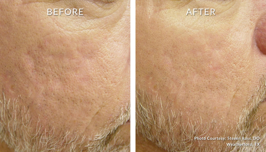 Laser Genesis for Texture and Rosacea
