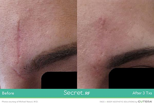 Secret RF Before and After - Scar