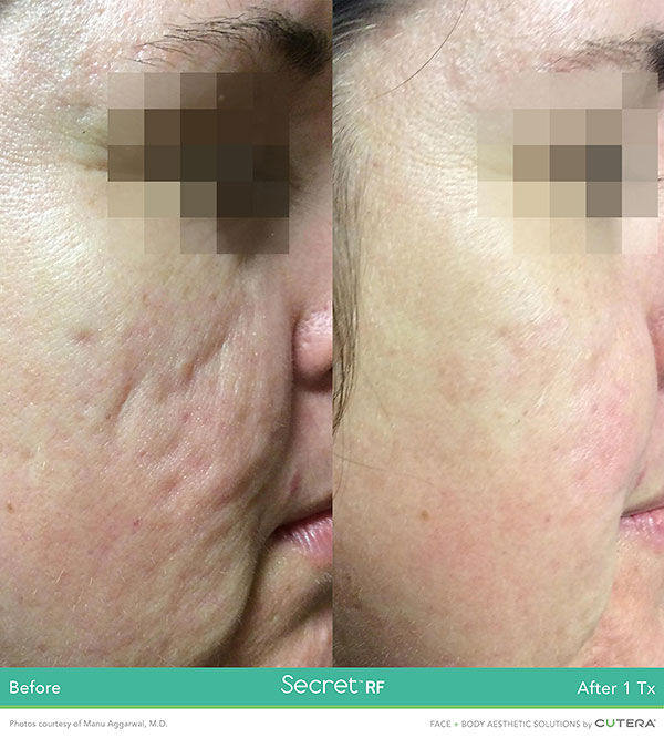 Secret RF Before and After - Cheeks