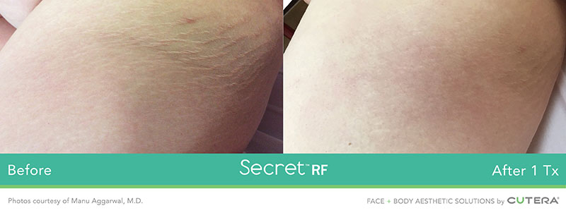 Secret RF Before and After - Face and Body