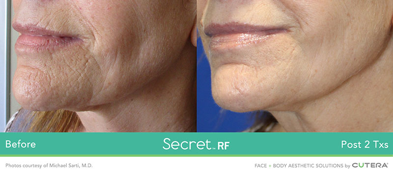 Secret RF Before and After - Chin and Neck