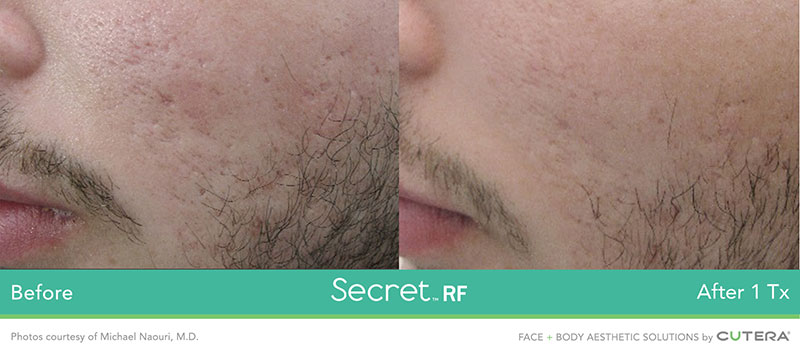 Secret RF Before and After After 1 Tx - For Men