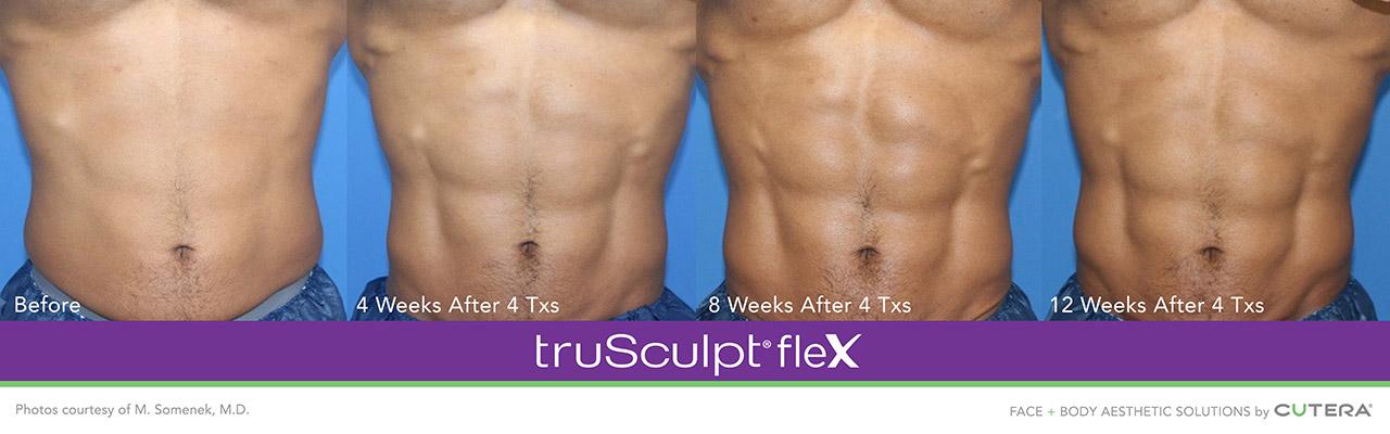 truSculpt flex for men - 12 weeks