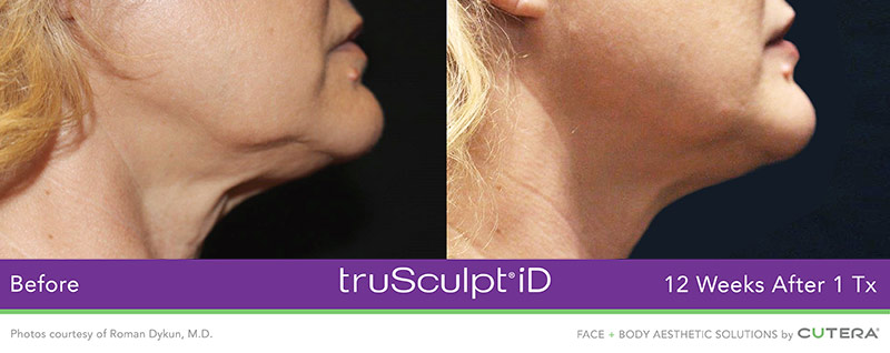 truSculpt iD Before and After - 12 Weeks after 1 Tx