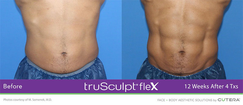 truSculpt®flex 12 Weeks After 4 Txs