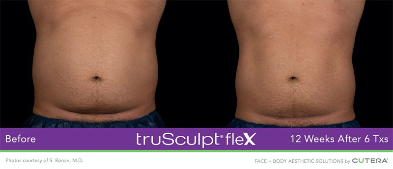 truSculpt®flex 12 Weeks After 6 Txs