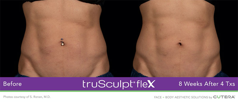 truSculpt®flex 8 weeks after 4 Txs