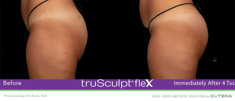truSculpt®flex Immediately After 4 Txs